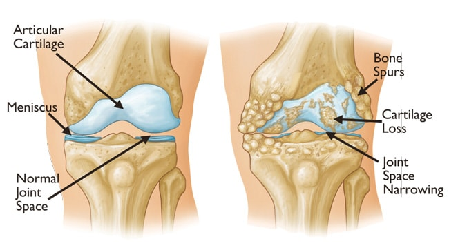 d9de8462fd Knee Osteoarthritis - An Overview - Robert Howells